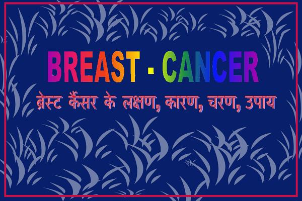 Breast Cancer in Hindi: ब्रेस्ट कैंसर के लक्षण, स्तन कैंसर, breast cancer symptoms in hindi
